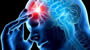 Инсульт – нарушение кроовобращения